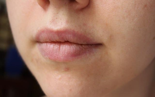 Борная кислота от прыщей на лице: применение и эффективность