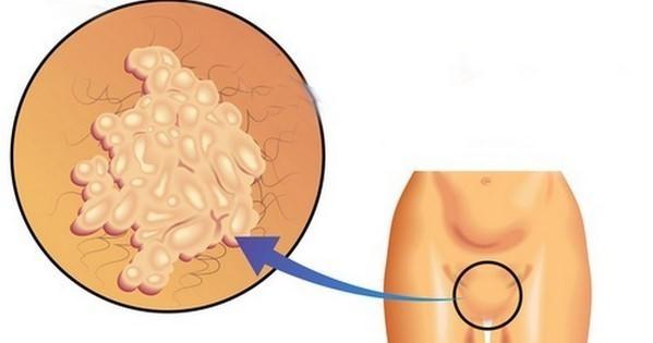 Папилломы во влагалище на слизистой, как выглядит на фото и как убрать