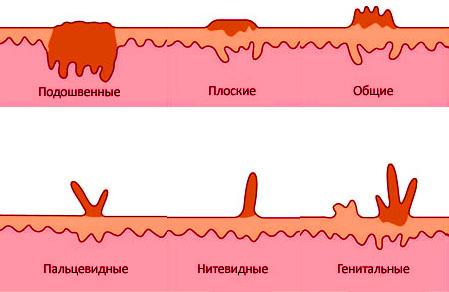 Папилломы под грудью, причины с фото и лечение народными средствами