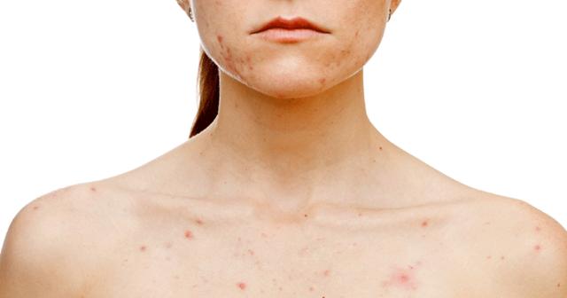Сыпь на груди у взрослого - фото, причины и как избавится