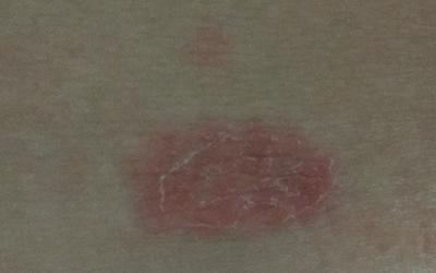 Почему на животе появились красные пятна, все причины с фото