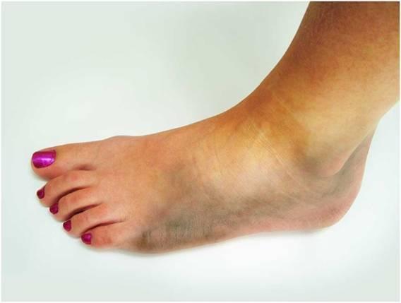 Хрустит голеностоп - все причины, и опасно ли?