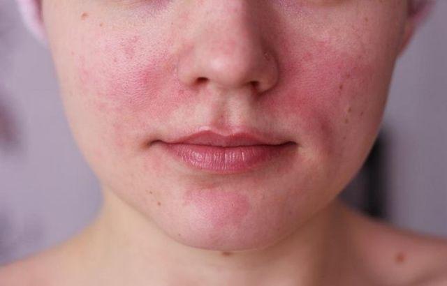 Лечение аллергического контактного дерматита на лице и теле