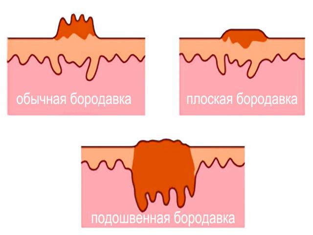 Чем отличается папиллома от кондиломы, в чем разница?
