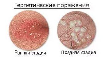 В интимном месте появилась шишка в виде шарика - фото, причины, лечение