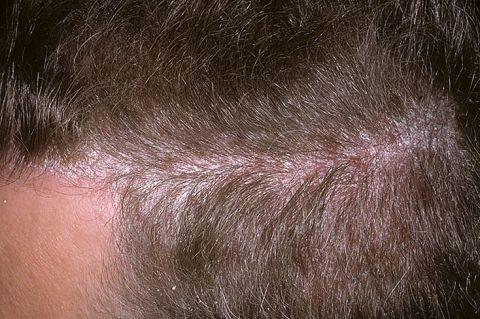 Белые пятна на голове у детей и взрослых на коже, все причины