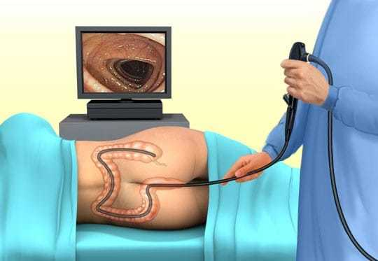 Папилломы в кишечнике и прямой кишке, причины, фото, лечение
