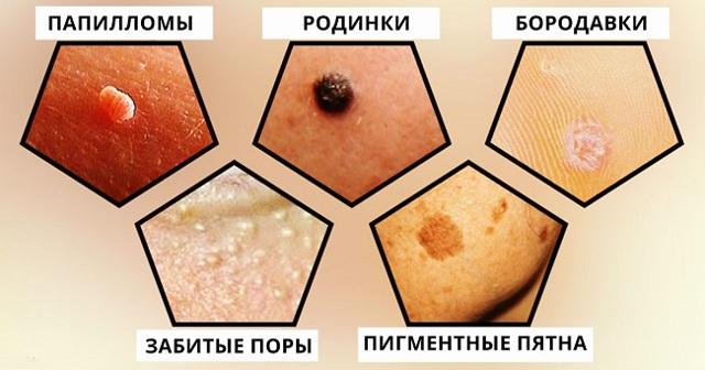 Чем отличается полип от папилломы - все отличия на фото