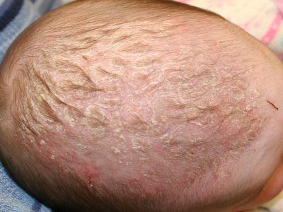 Шелушится кожа на голове у грудничка - все причины с фото и как лечить
