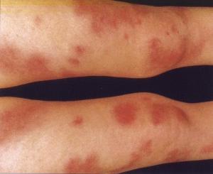 Узловатая эритема на ногах - фото, причины и лечение