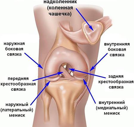 Разрыв связок коленного сустава - передних, задних, боковых