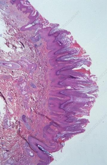 Плоскоклеточная папиллома: фото и причины на разных местах