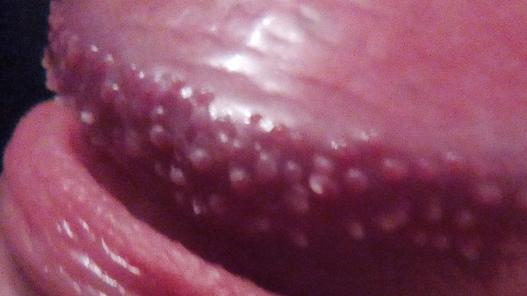 Прыщи на члене и головке у мужчин, фото, причины и лечение