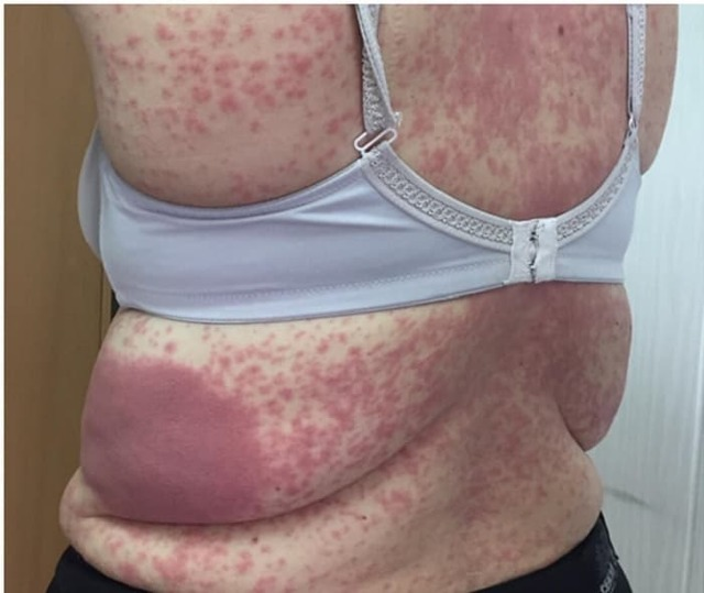 Розовые пятна на коже, причины почему они появляются с фото