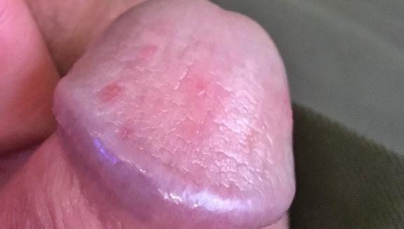 Сыпь на головке у мужчин: фото, причины, и как лечить