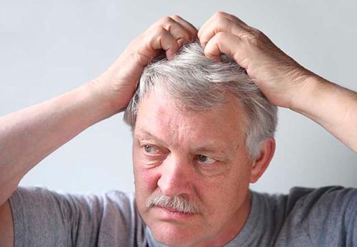 Прыщи на голове в волосах: причины у мужчин, фото и лечение