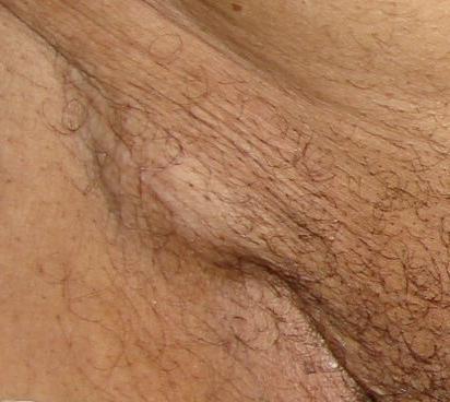 Шишка на лобке: фото, причины уплотнения и лечение