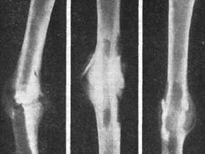 В месте перелома на ноге появилась шишка
