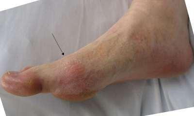 Болит мизинец на ноге -все причины и что делать