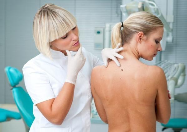 Папилломы на спине, виды, причины с фото и как убрать