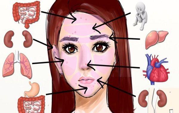 За какие органы отвечают прыщи на лице у женщин или мужчин